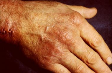 aca inflammatory phase