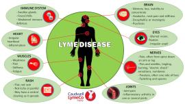 lYME DSIEASE SYMPTOMS