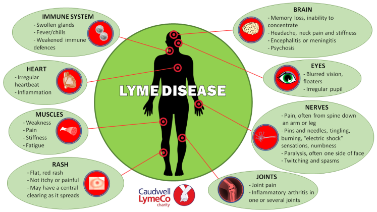 What does the NICE guideline for Lyme disease say
